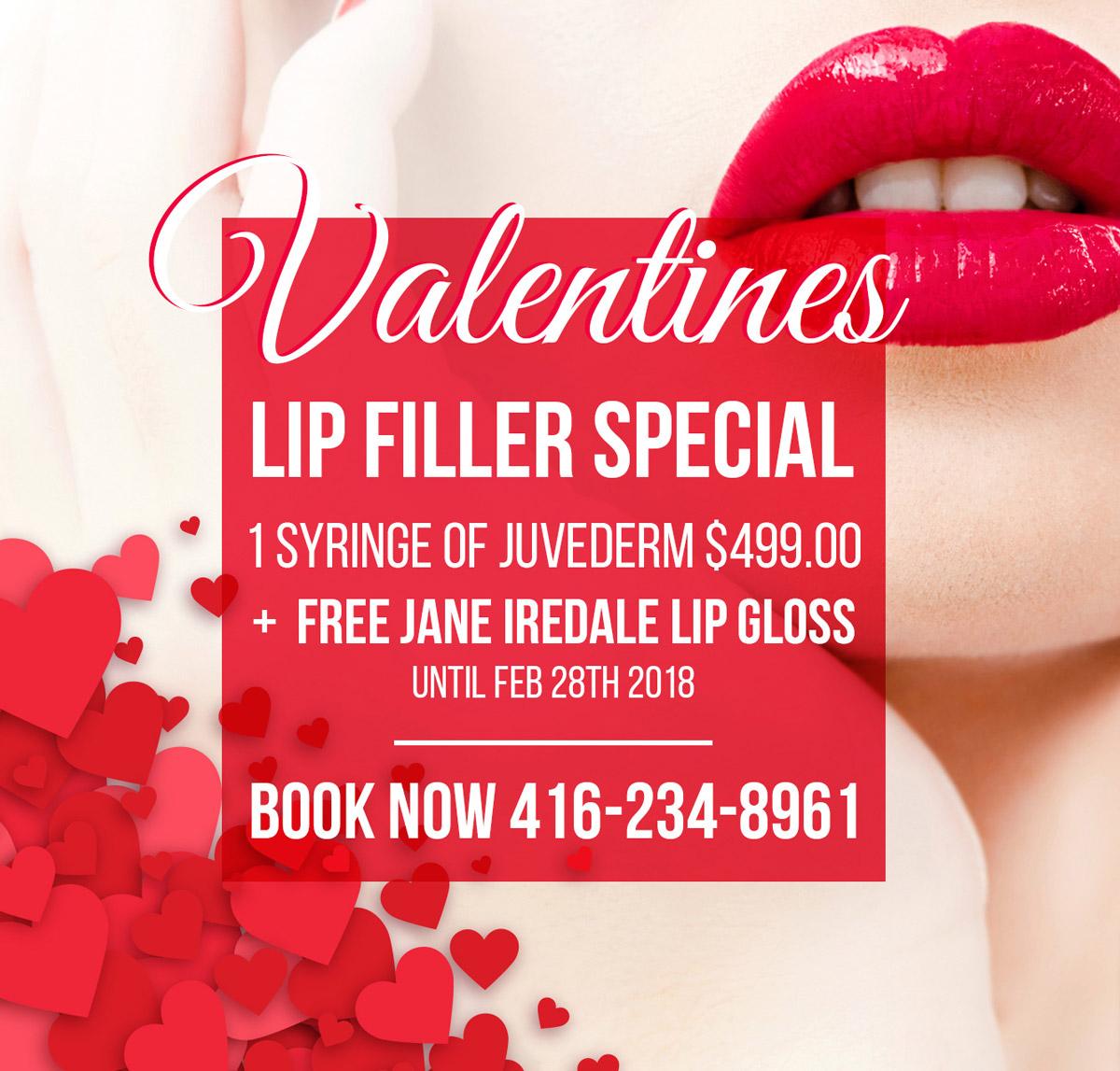 Valentines Lip Filler Special